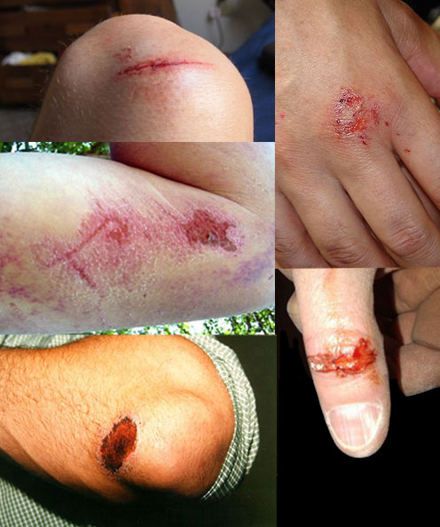 Graze injuries