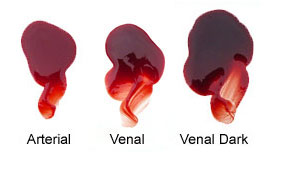 Arterial vs venal blood