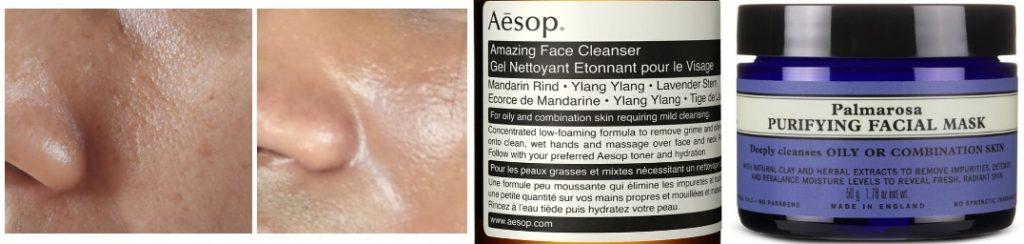 skin types oily